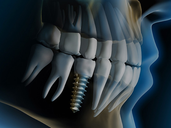 4)implantologia